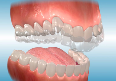 Stanley Orthodontics Describes Orthodontic Appliances