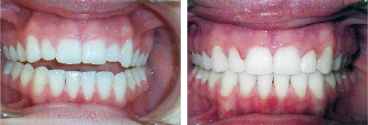 Before and after braces and Invisalign