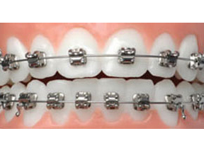 In-Ovation braces
