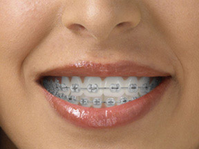 Choose The Look Of Your Braces Fresno Ca Invisalign