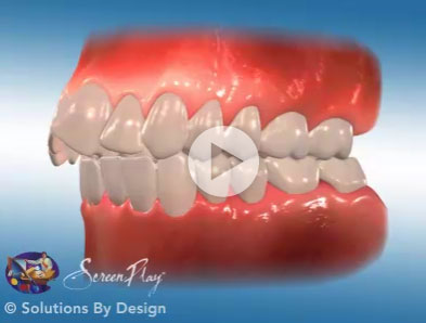 Class II orthodontic problem
