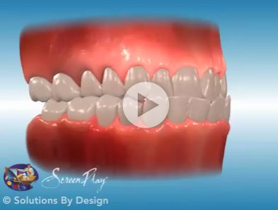 Class III orthodontic problem