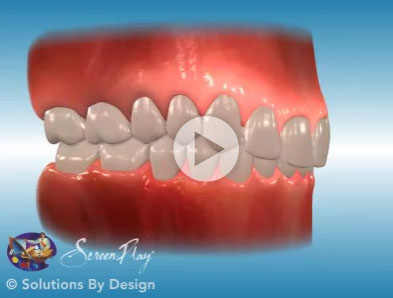 Deepbite orthodontic problem