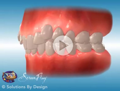 Excessive Gingival Display orthodontic problem