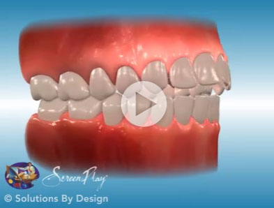 Openbite orthodontic problem