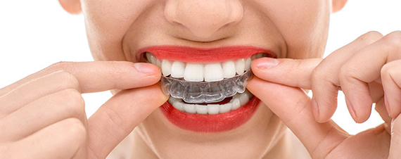 The Invisalign process