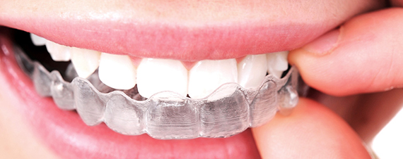 Invisalign clear braces in Fresno